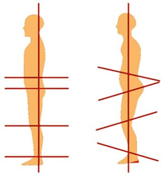 zero-drop-vs-heeled-shoe-posture-diagram